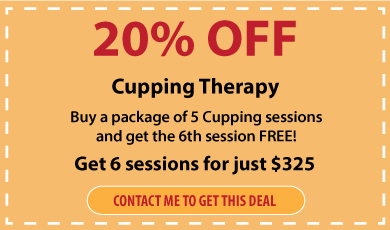 feb-cupping-therapy