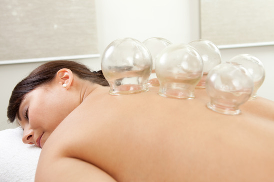Acupuncture Cupping Treatment Toronto