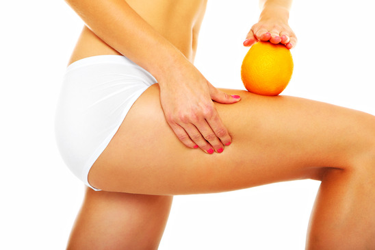 Cellulite treatment toronto