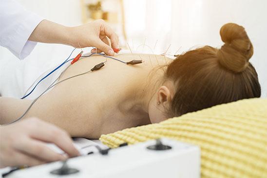 electroacupuncture-toronto-ontario-canada